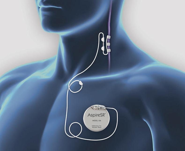 VNS behandling af epilepsi